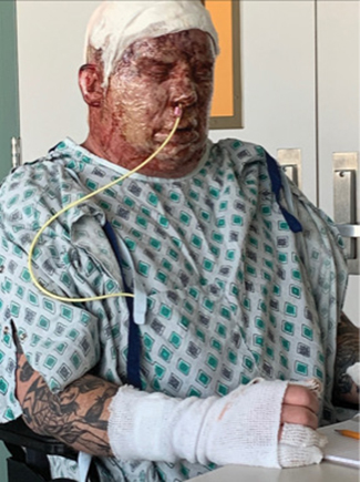 Zeigler several days after being admitted to the University Medical Center with severe burns covering more than 30% of his body.