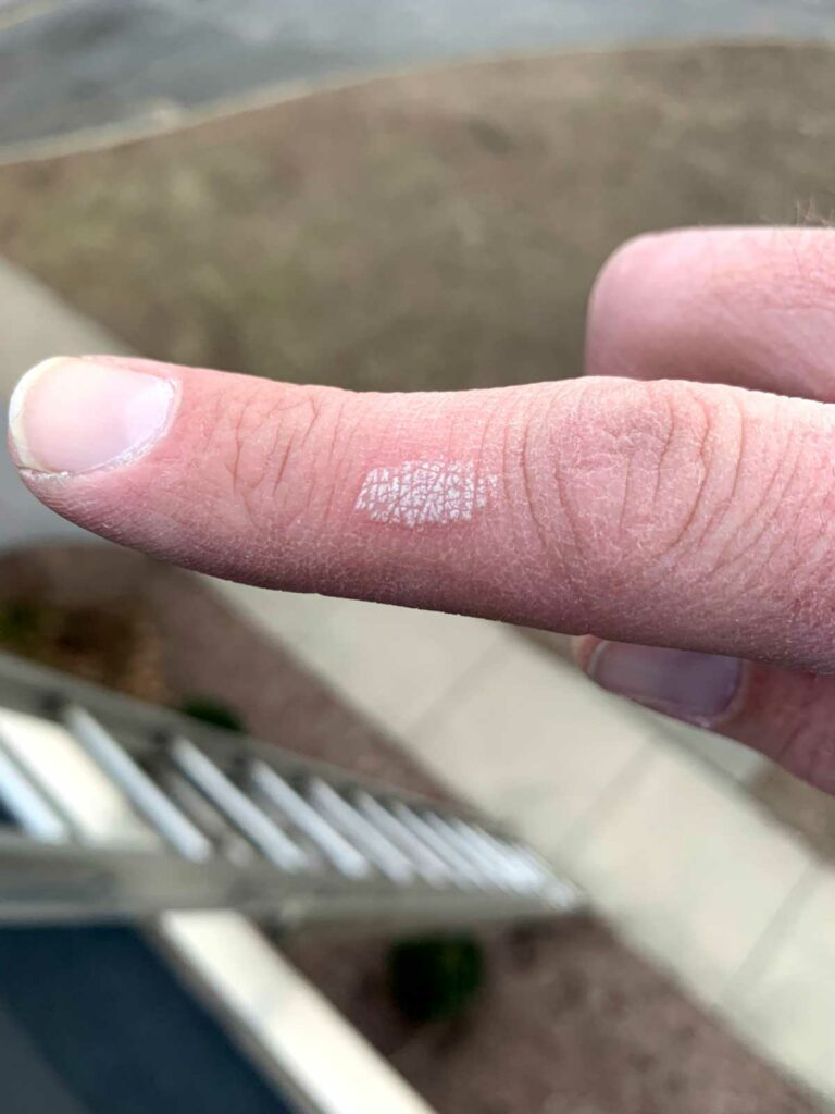 Finger after coming in contact with heat exchanger