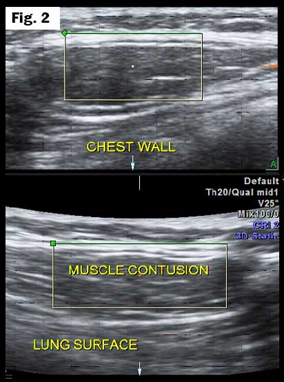 Chestwall contusion